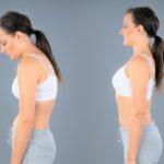 Hyperkyphose/Rundrücken mit diesen Übungen nachhaltig loswerden