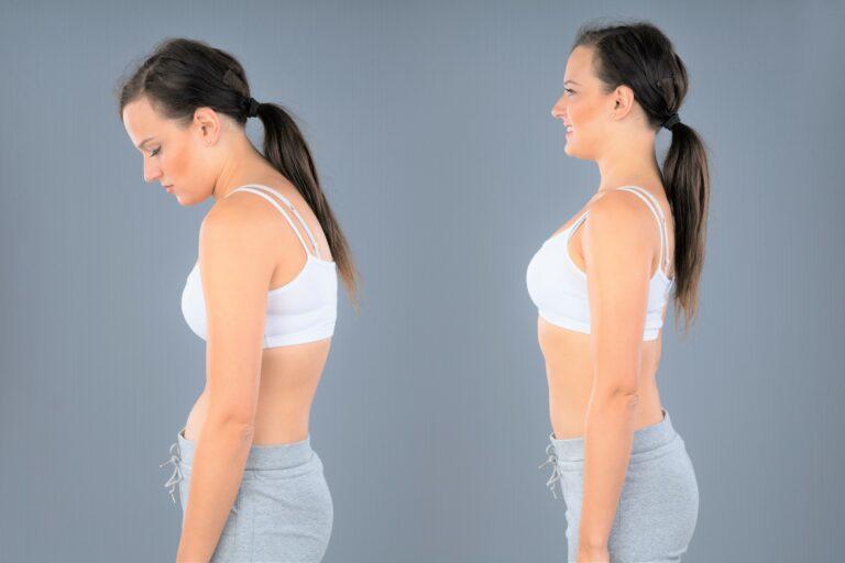 Read more about the article Hyperkyphose/Rundrücken mit diesen Übungen nachhaltig loswerden
